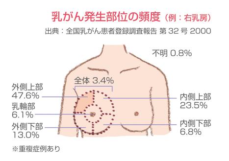 https://www.konicaminolta.jp/pinkribbon/qa1/img/qa1_img_pict003.jpg